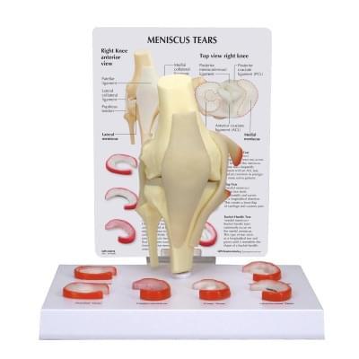 1019500 - Model menisku kolene se 6 natrženími