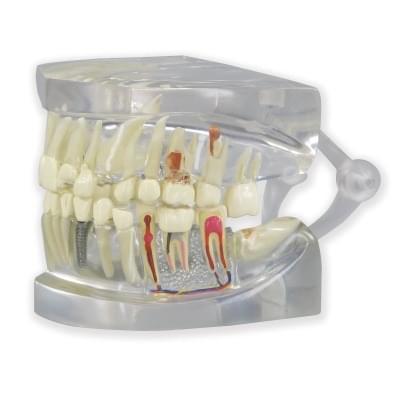 1019540 - Průhledná čelist člověka s modelem zubů