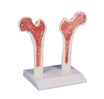 4030 - Osteoporóza stehenní kosti
