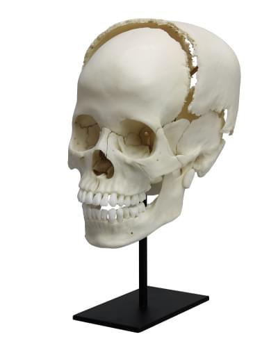 4705 - Rozčleněná lidská lebka pro lékařské studie