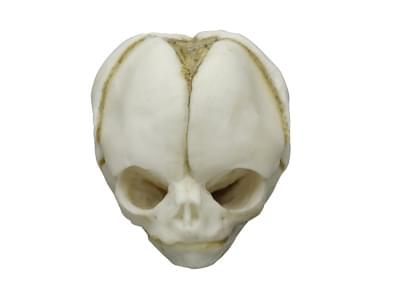 4765 - Lebka 20týdenního plodu