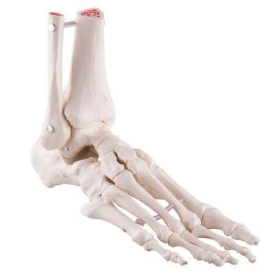 A31/1 - Volná kostra chodidla a kotníku