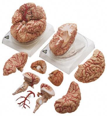 BS 23 - Mozek a tepny