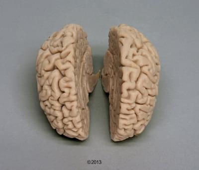 C710 - Lidský mozek, skutečný odlitek, pro lebku 4710