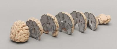 C720 - Čelní průřezy lidského mozku