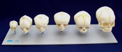 Vývoj lebky plodu – šest stádií