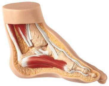 NS 4 - Koňská noha