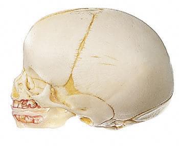 QS 3 - Umělá lebka plodu