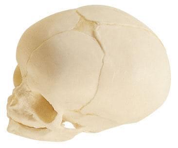 QS 3/3 - Umělá lebka plodu