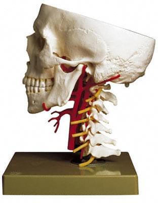QS 65/6 - Umělý model spodiny lebeční s tepnami