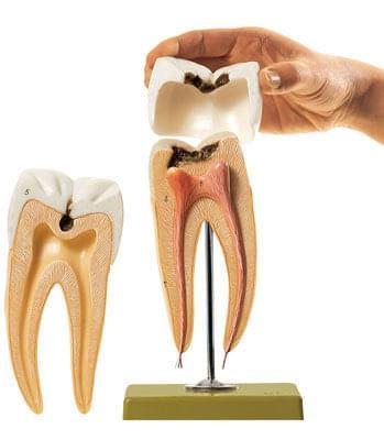 ES 8 - Stolička se zubním kazem