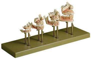 ES 14/1 - Vývoj zubů - set (úplné modely)