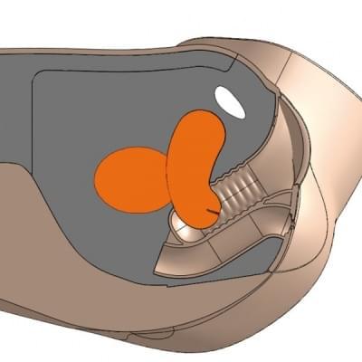 60923 - CFPT Modul 4: ovariální cysta – děloha vícerodičky