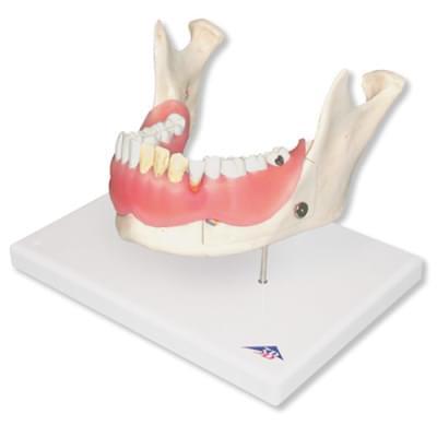 D26 - Zubní onemocnění, 2 krát zvětšené, 21 částí