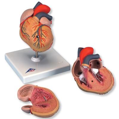 G04 - Klasický model srdce s hypertrofií levé komory, 2 části