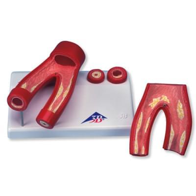 G40 - Model aterosklerózy s průřezem tepny, 2 části