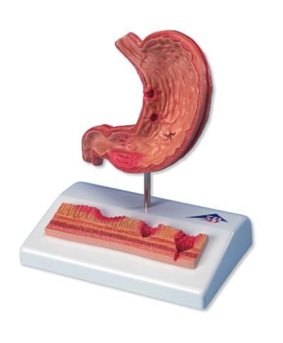 K17 - Model žaludku s vředy