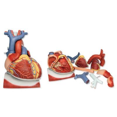 VD251 - Model srdce na bránici, 3 krát zvětšený, 10 částí