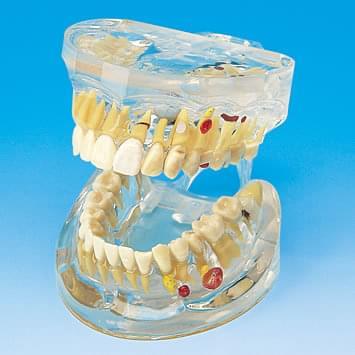 Transparentní model onemocnění zubů