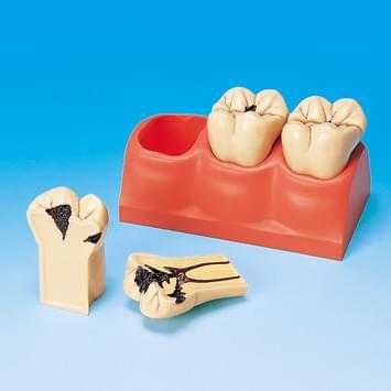 4× zvětšený model zubních kazů