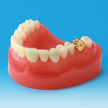 Model restaurace/náhrady zubu PE-PRO001