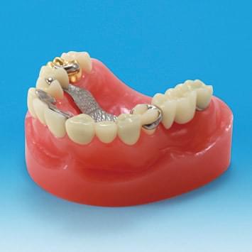 Model restaurace/náhrady zubu PE-PRO002