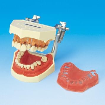 Model onemocnění parodontu PE-PER001