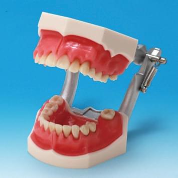 Model onemocnění parodontu PE-PER003