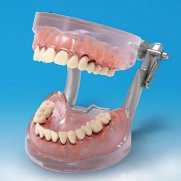 Model onemocnění parodontu PE-PER004