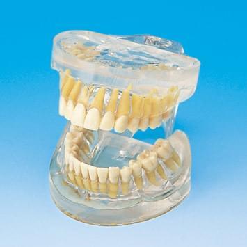 Transparentní model čelistí se zuby