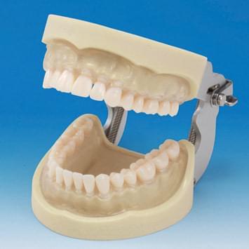 Model čelisti s protetickou náhradou (32 zubů) - transparentní dáseň