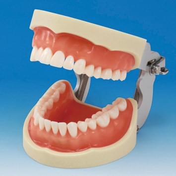 Model čelisti s protetickou náhradou (32 zubů) - dáseň pro silikonový otisk