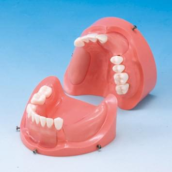 Komplexní model pro nácvik vkládání implantátů (horní čelist) - IMP1011