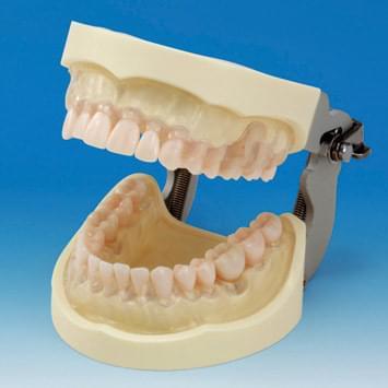 Model čelistí k nácviku odstraňování zubního kamene