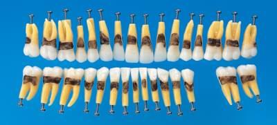 Anatomický model zubu s jednoduchým kořenem (sada 31 zubů)