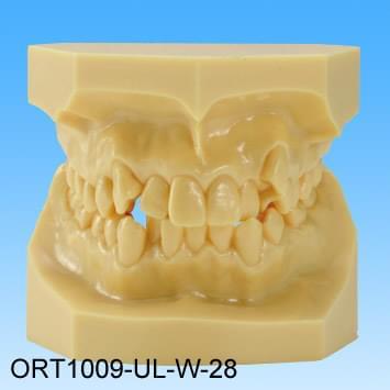 Pryskyřičný model vadného skusu (třída I stěsnané zuby)