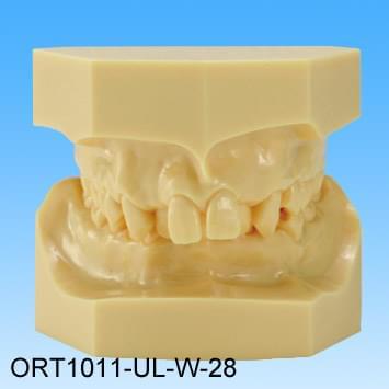 Pryskyřičný model vadného skusu (třída II skupina I stěsnané zuby)