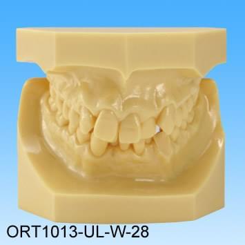 Pryskyřičný model vadného skusu (třída II skupina 2 stěsnané zuby)
