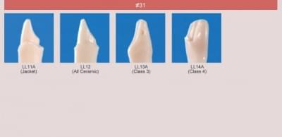 Model zubu pro přípravu pilíře můstku a čištění zubu před výplní (zub č. 31)