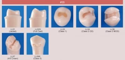 Model zubu pro přípravu pilíře můstku a čištění zubu před výplní (zub č. 35)