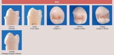 Model zubu pro přípravu pilíře můstku a čištění zubu před výplní (zub č. 45)
