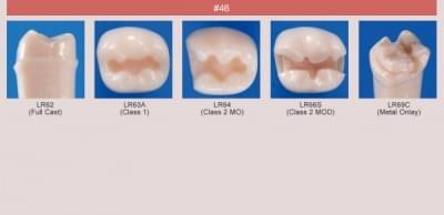 Model zubu pro přípravu pilíře můstku a čištění zubu před výplní (zub č. 46)