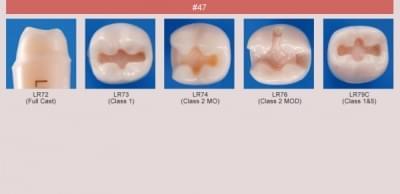 Model zubu pro přípravu pilíře můstku a čištění zubu před výplní (zub č. 47)