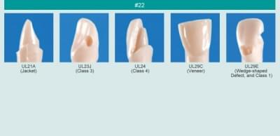 Model zubu pro přípravu pilíře můstku a čištění zubu před výplní (zub č. 22)