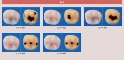 Model zubu se zubním kazem (zub č. 46)