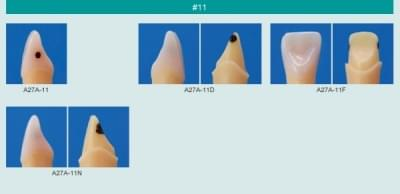 Model zubu se zubním kazem (zub č. 11)