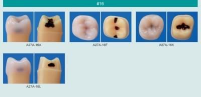 Model zubu se zubním kazem (zub č. 16)