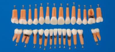 Model zubu s větvením a zubním kamenem (sada 27 zubů)