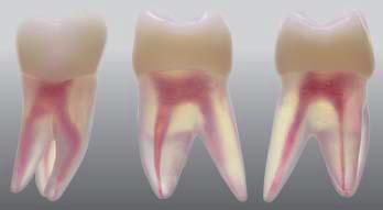 Endodontický model zubu - 3 kanálky