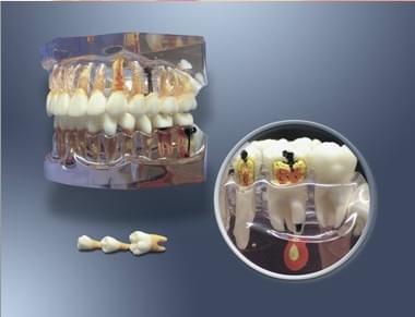 MDO-64 - Zvětšený model pro zubní hygienu a vývoj zubního kazu
